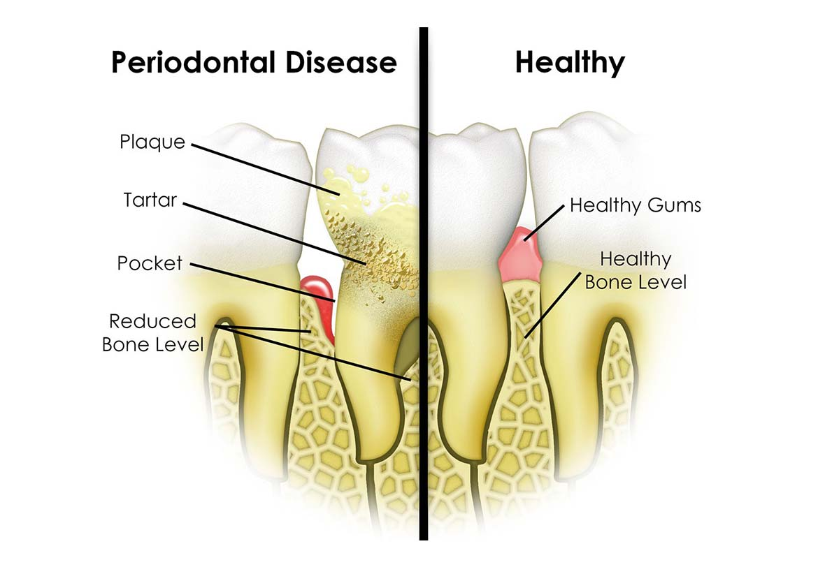 stress dieting and periodontal disease compromised • stress and anxiety reduction • avoidance of orthostatic hypotension  polydipsia, polyphagia, weight loss, loss of strength – bed wetting, skin infections, irritability, headache drowsiness,  • increased incidence and severity of periodontal disease • burning mouth syndrome • oral fungal infections.